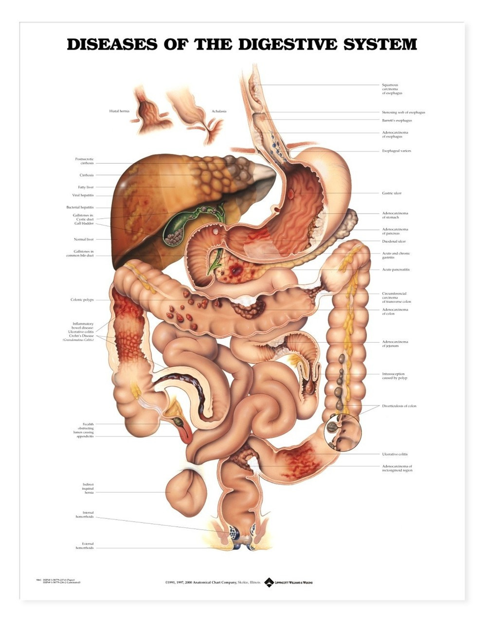 Diseases of the Digestive System Anatomical Chart