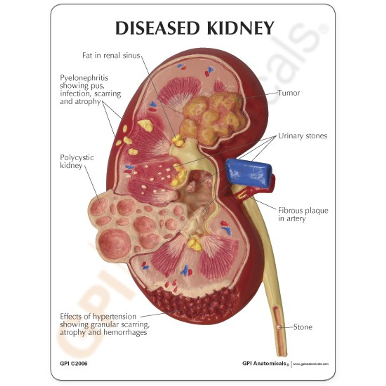 Kidney Model Description Card