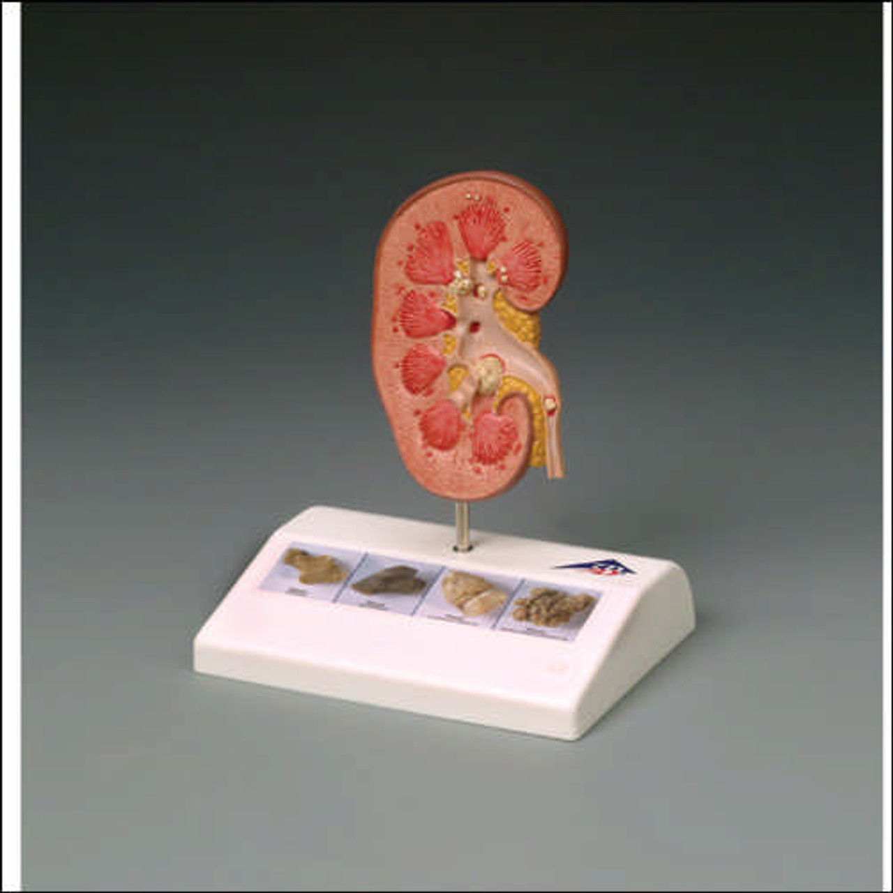 Kidney Stone Anatomical Model
