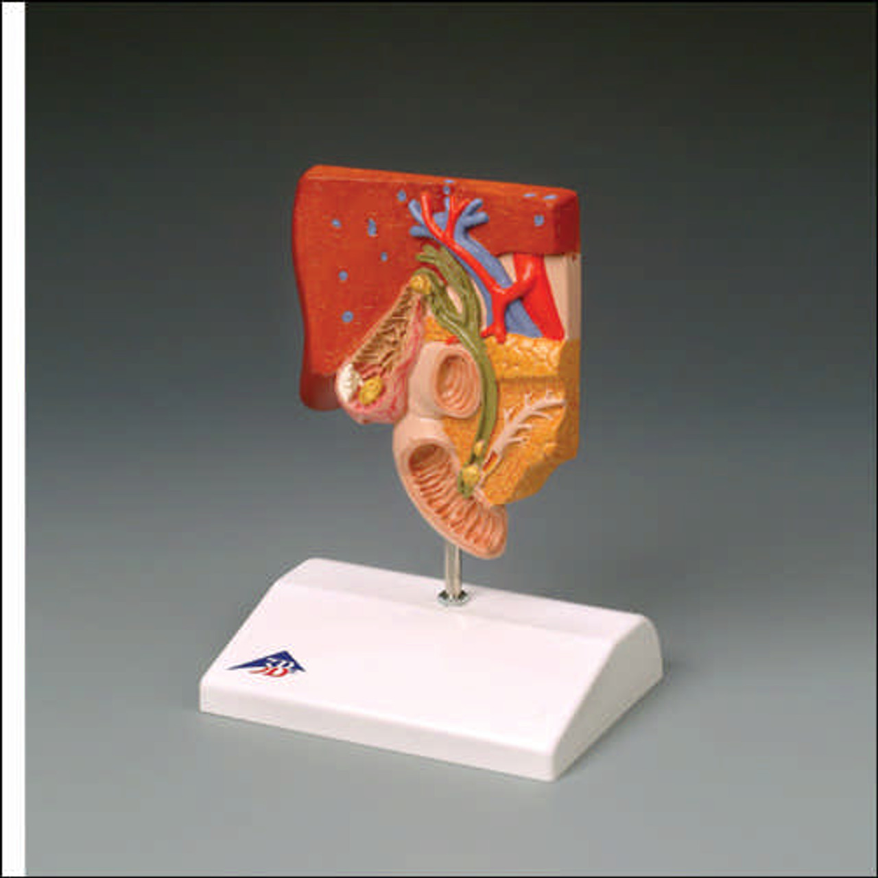 Gallbladder Gallstone Anatomical Model