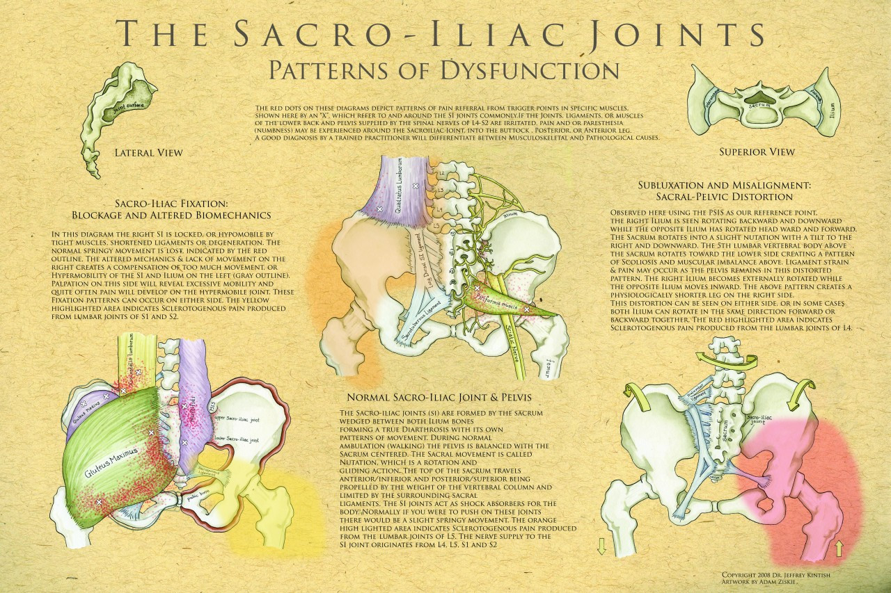 Sacroiliac Joint Poster