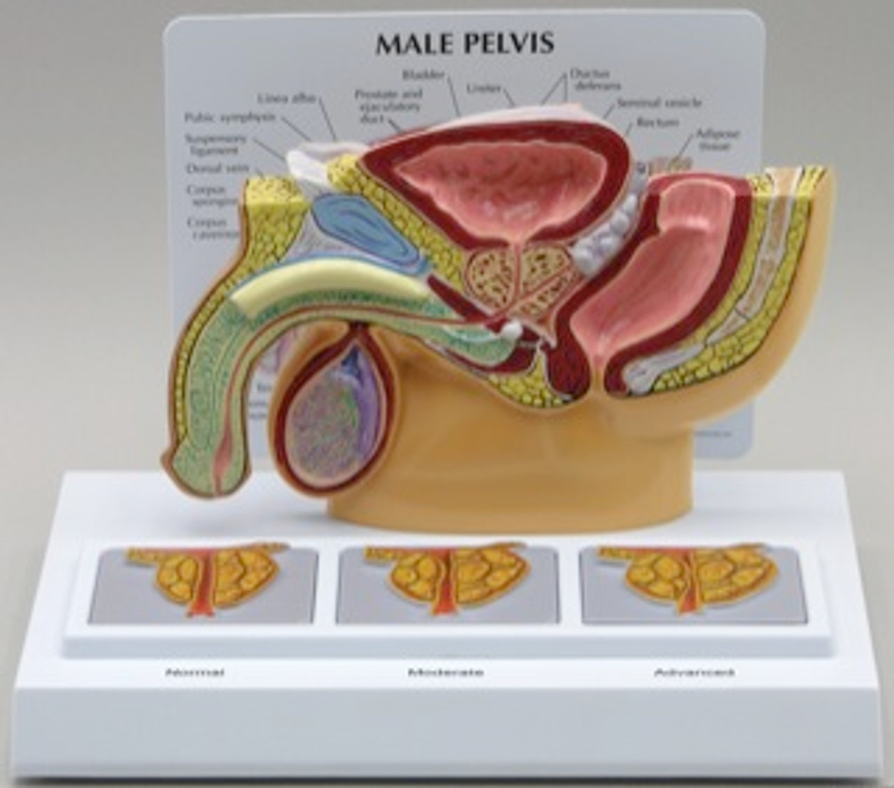 Male Pelvis and Prostate Anatomical Model