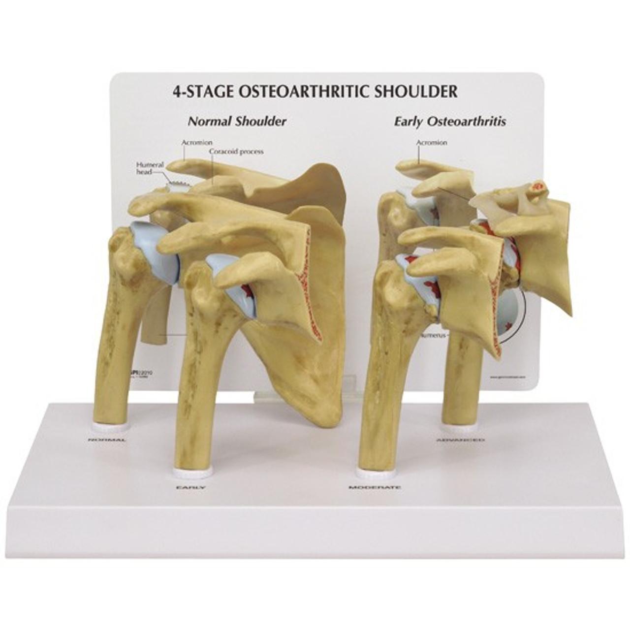 Shoulder Osteoarthritis Anatomical Model