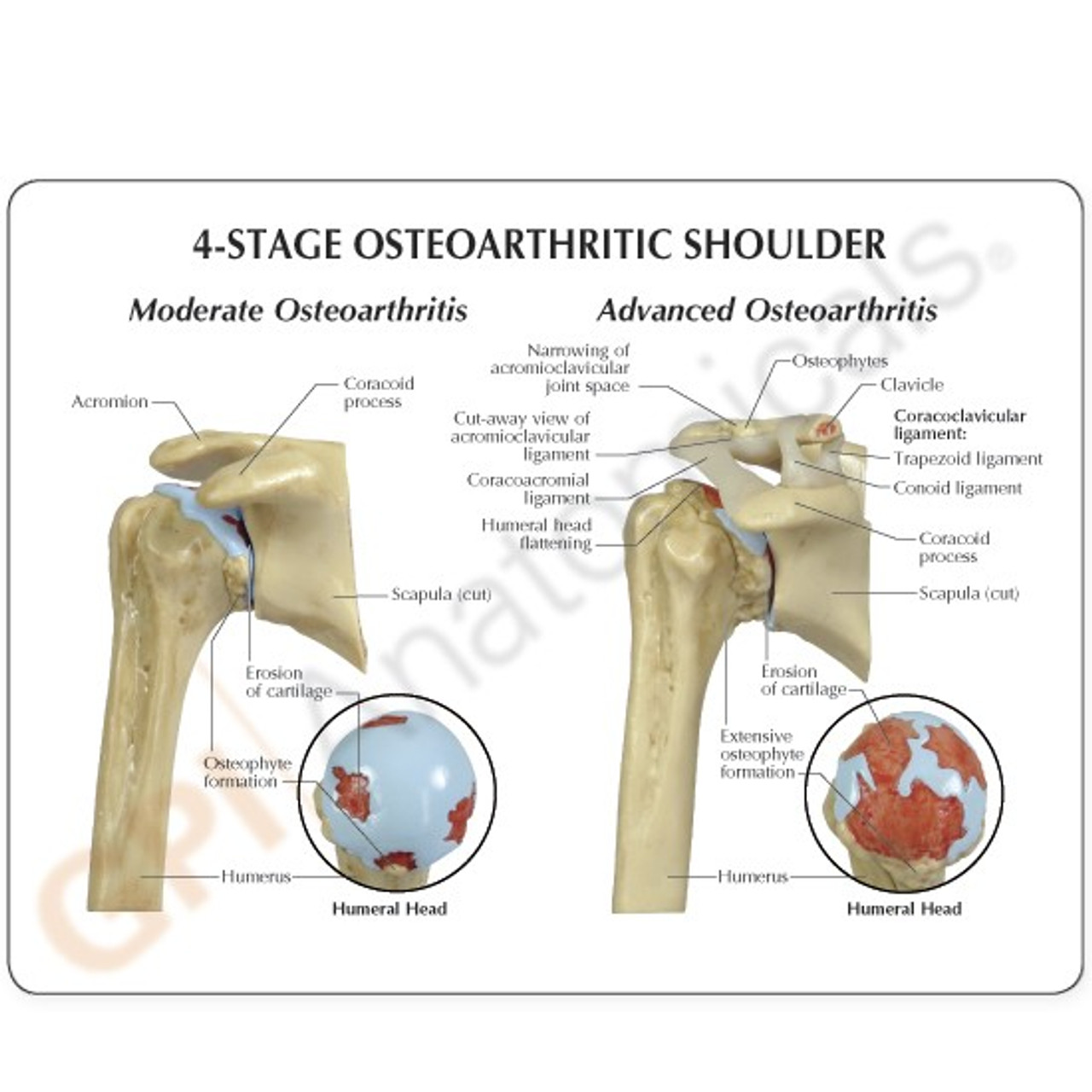 Shoulder Osteoarthritis Anatomical Model Description Card