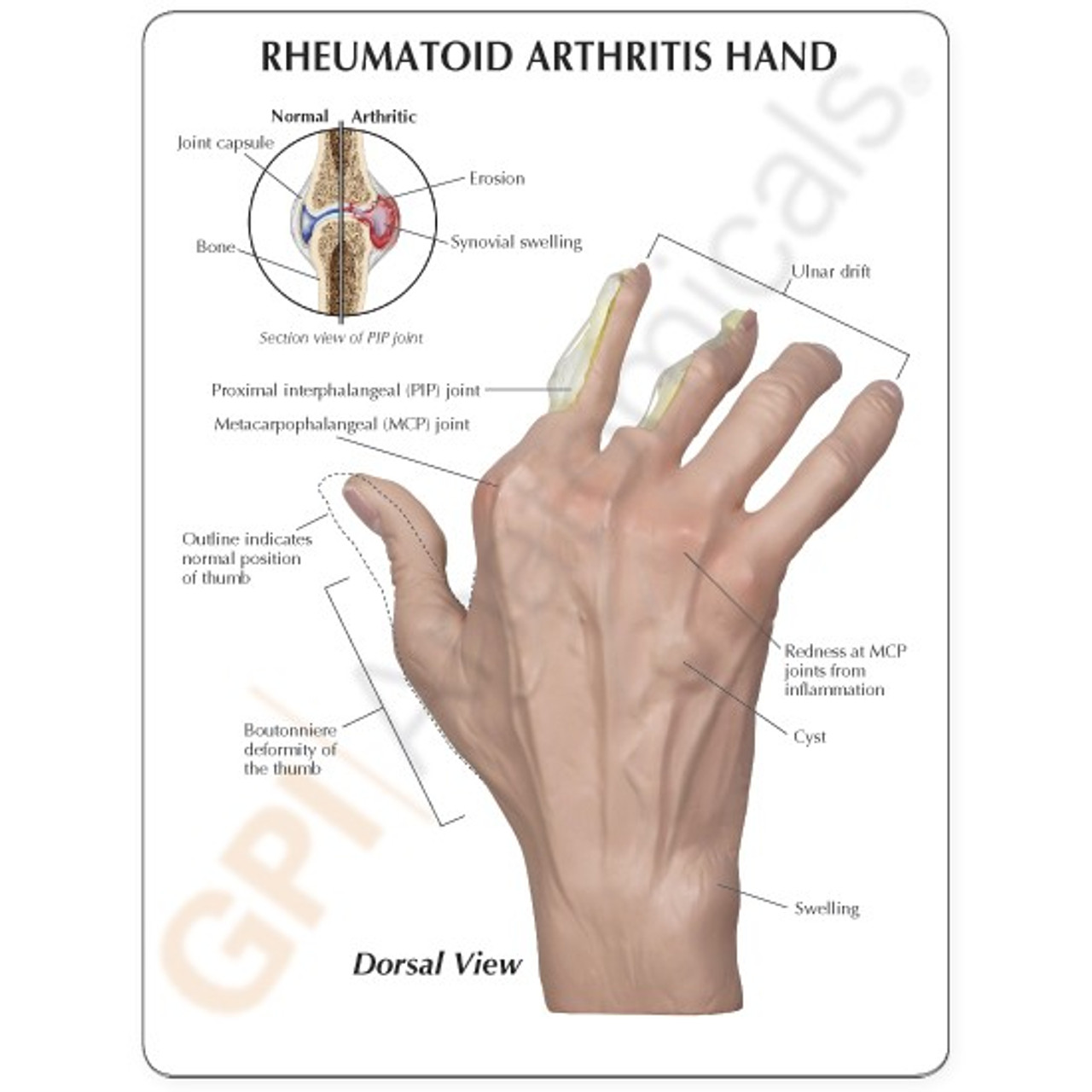 Hand Rheumatoid Arthritis Anatomical Model Description Card