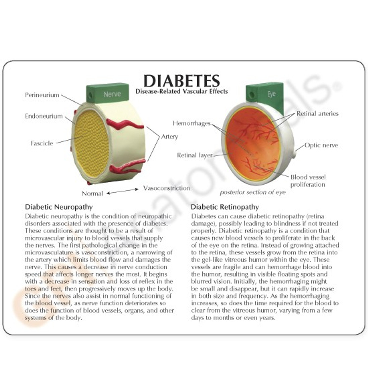 Diabetes model description card