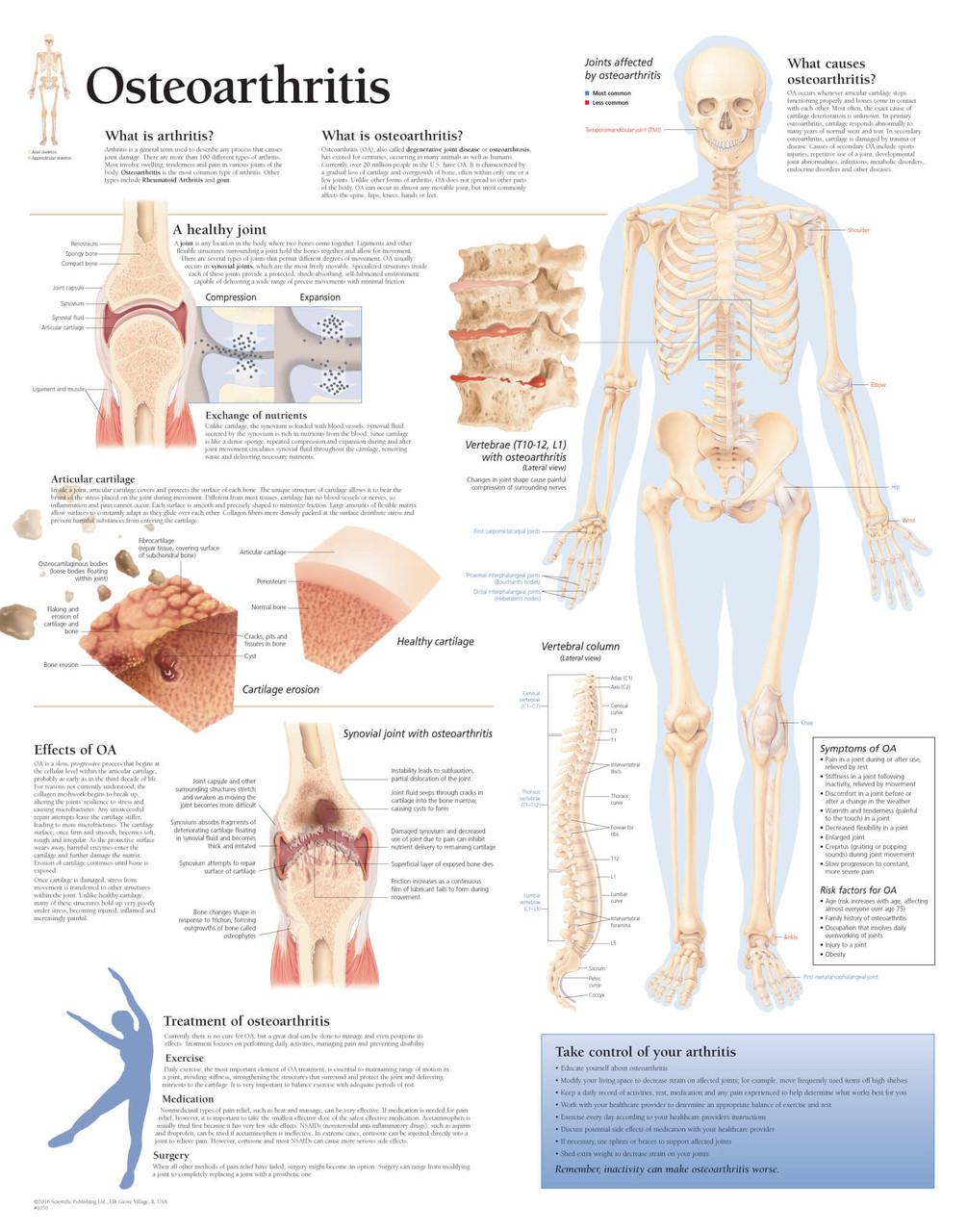 Osteoarthritis Anatomy Chart