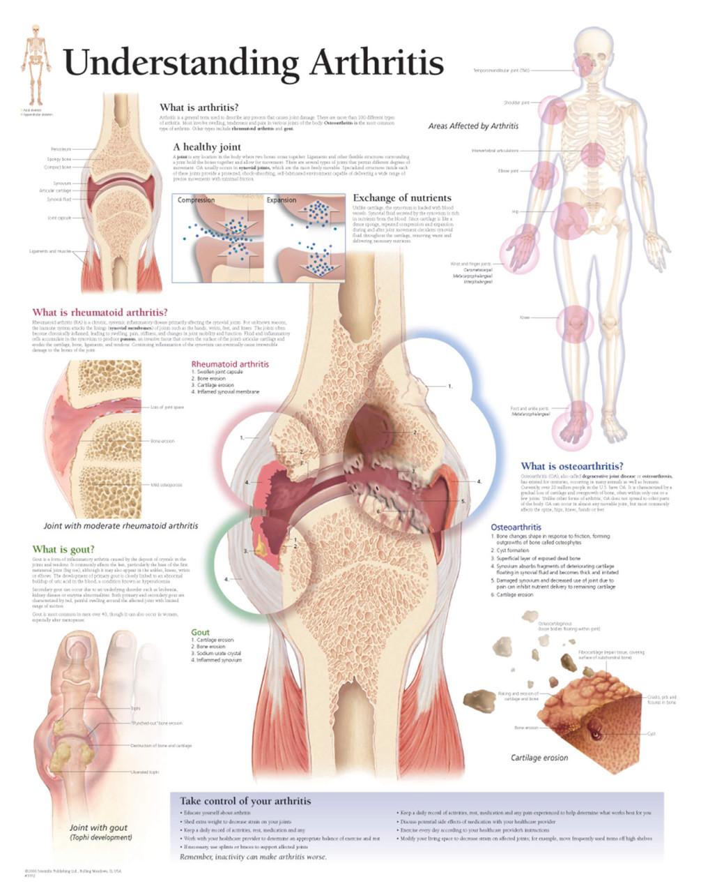 Osteoarthritis Poster
