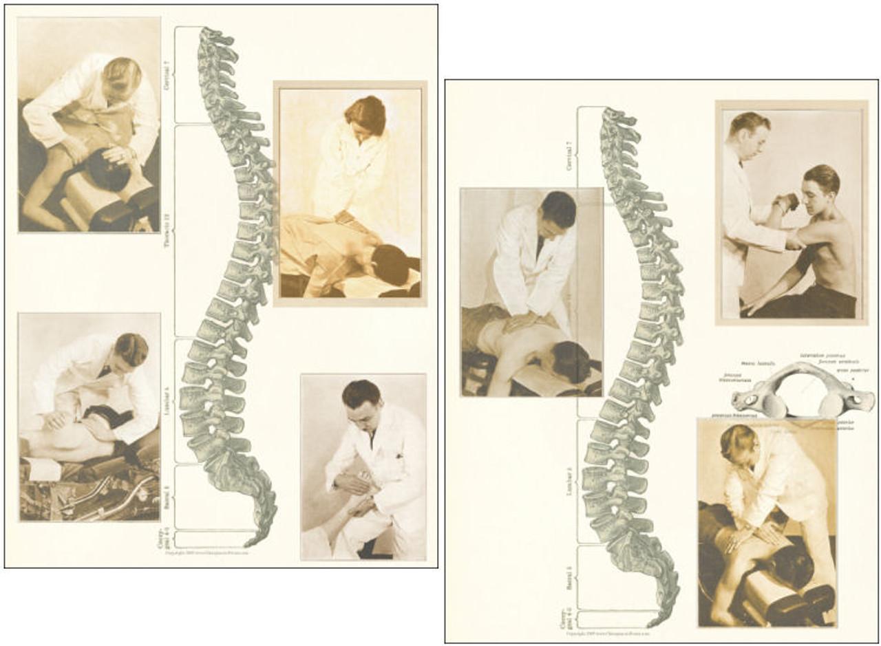 Chiropractic Adjustment Posters