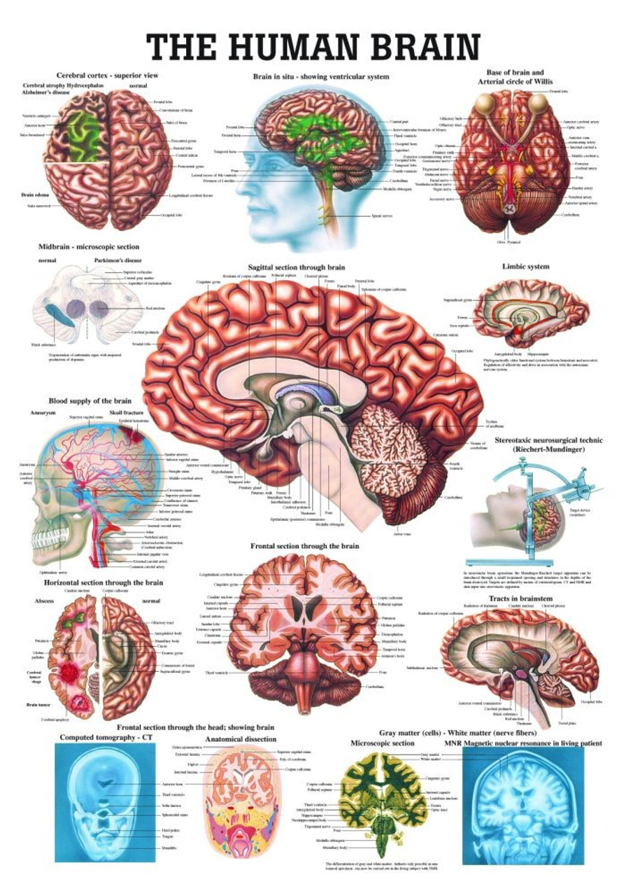 Human Brain Poster - Clinical Charts and Supplies