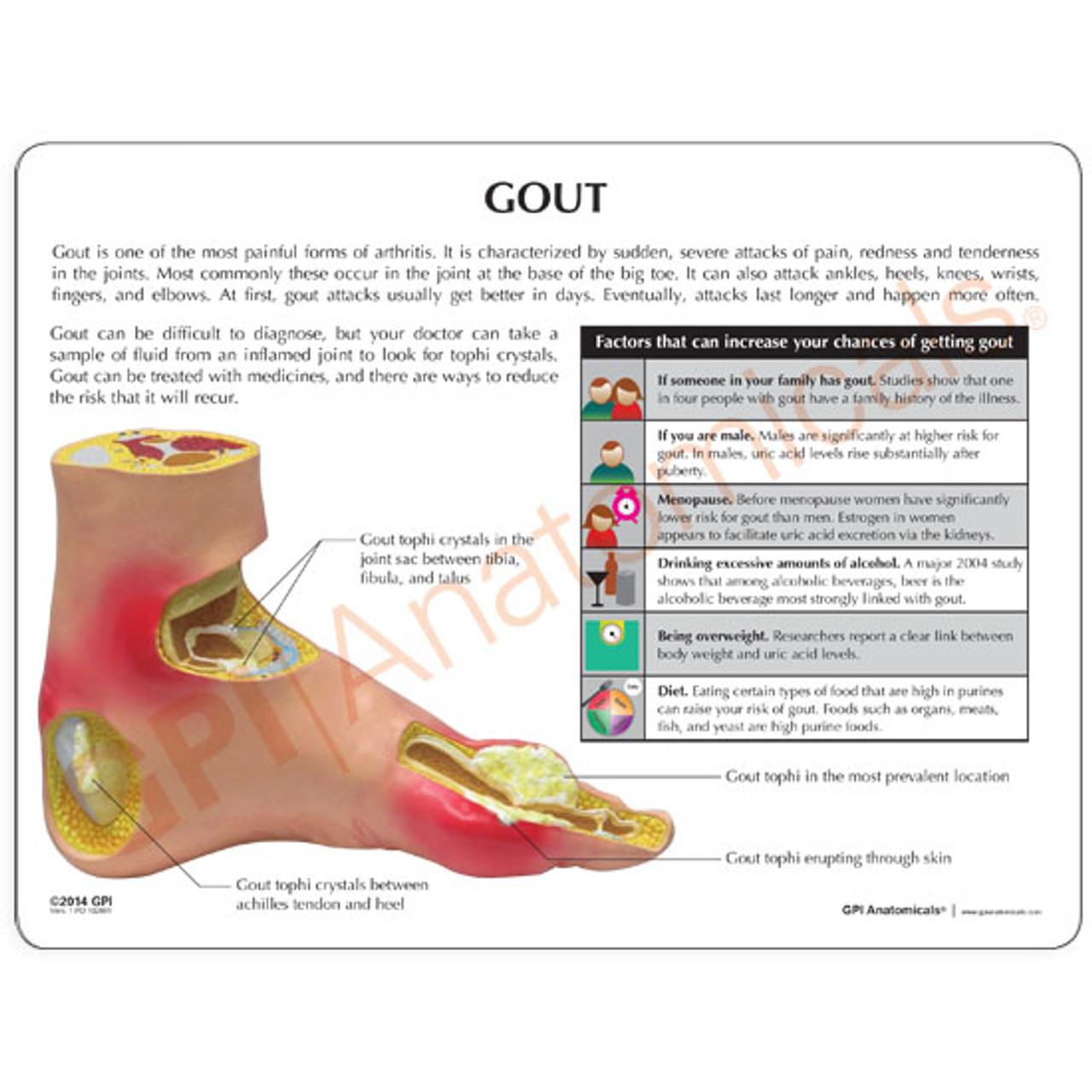 Gout Arthritis Foot Model Description Card