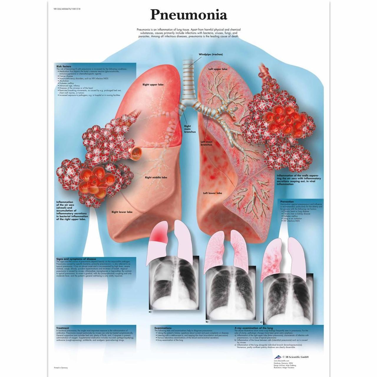 Pneumonia Poster