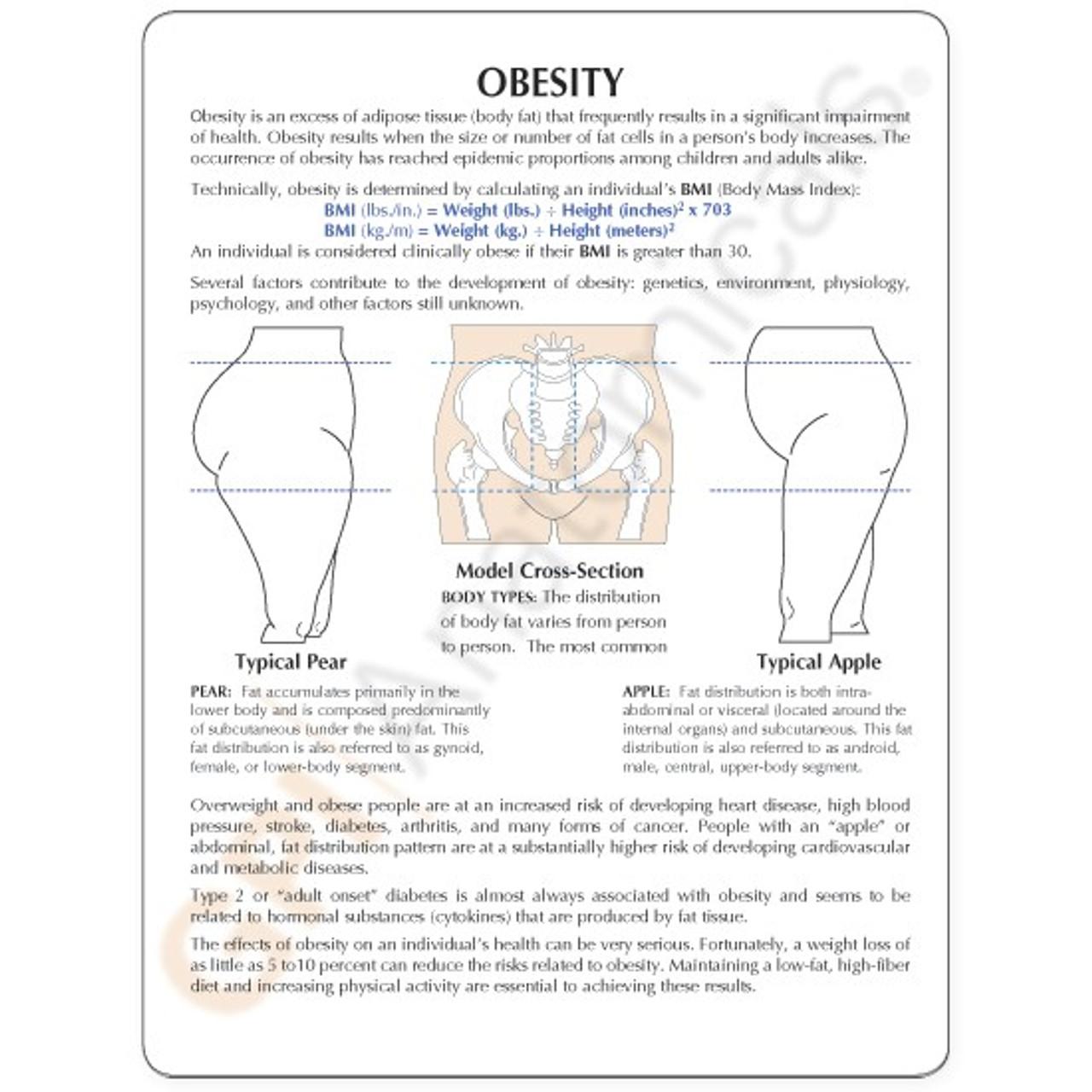 Obesity Anatomical Model Description Card