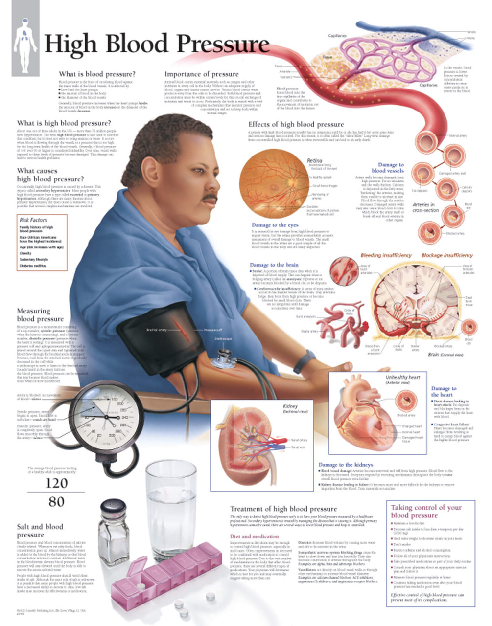 High Blood Pressure Anatomical Poster