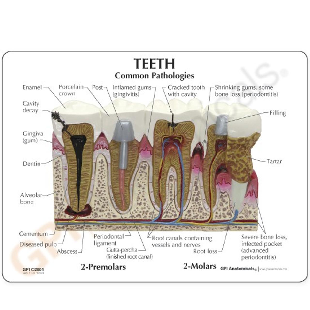Teeth Dental Model description Card