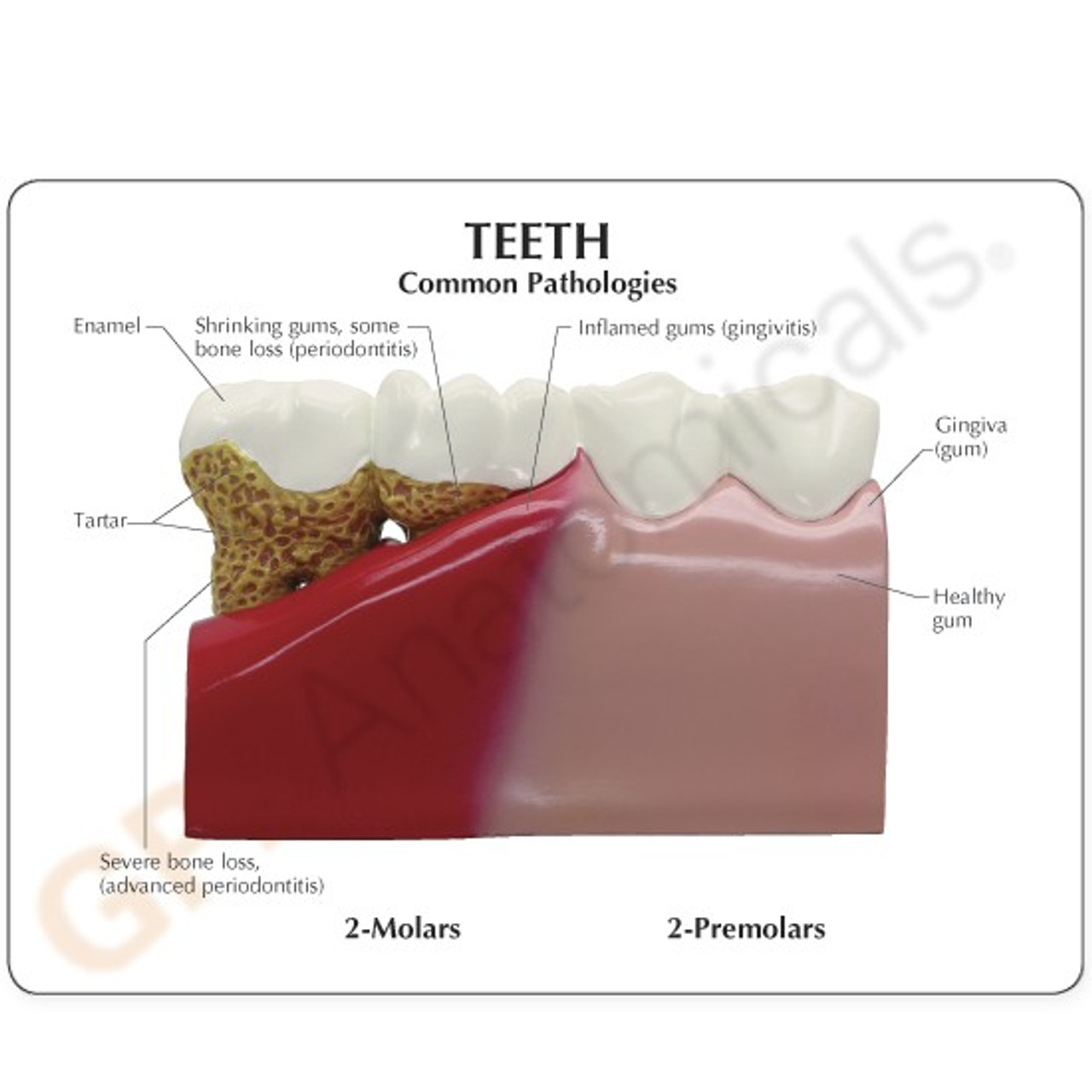 Teeth Dental Model description Card