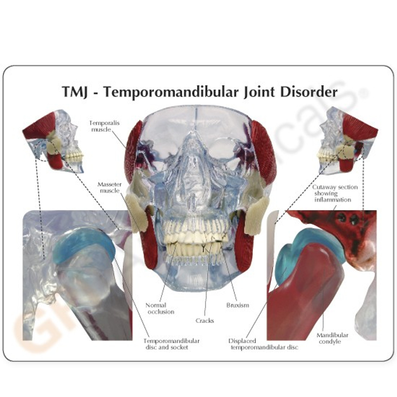 TMJ Dental Model description Card
