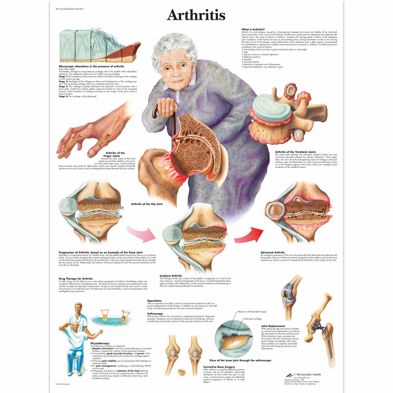 Artrosis Chart
