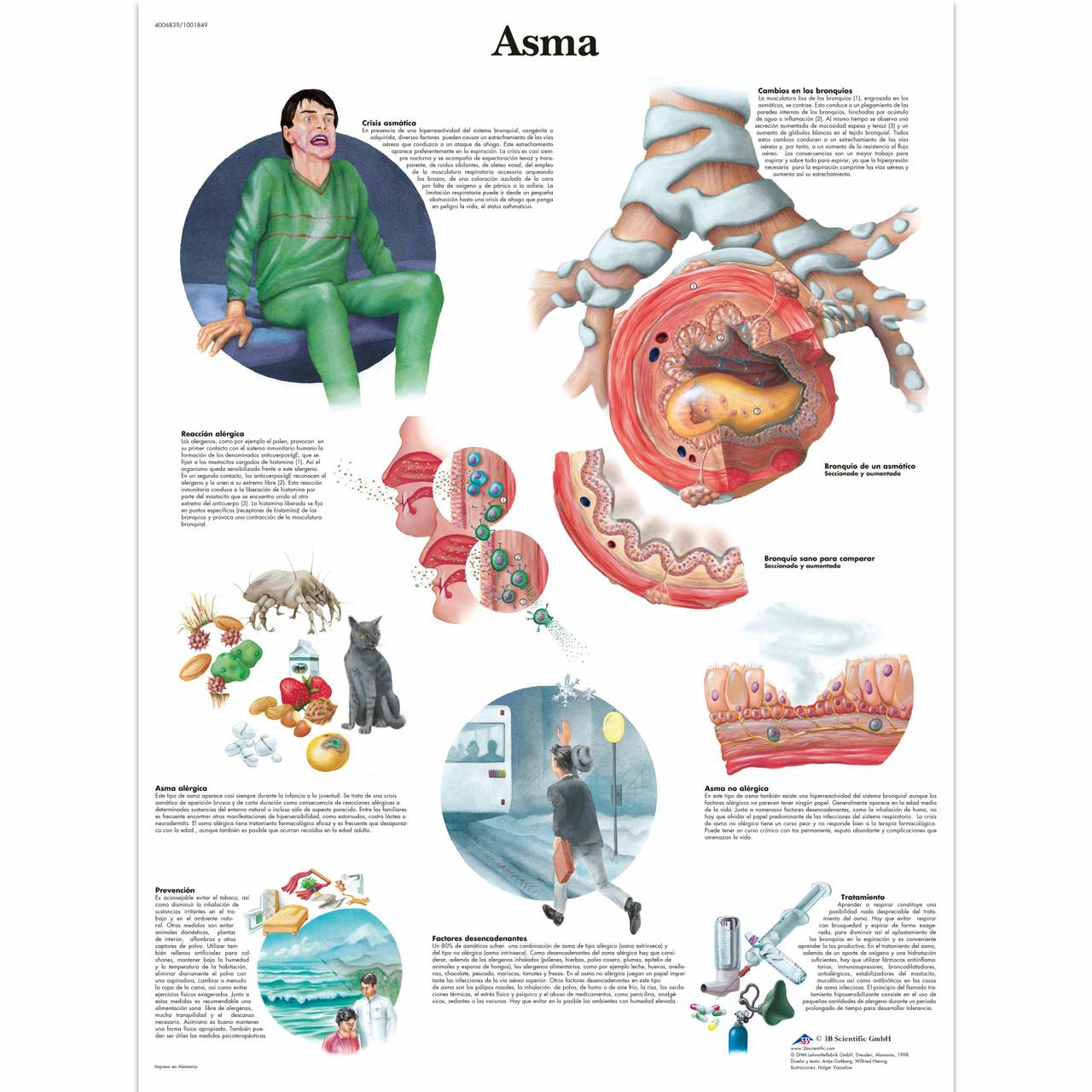 Asma Chart
