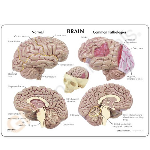 Brain with Skull Anatomical Model