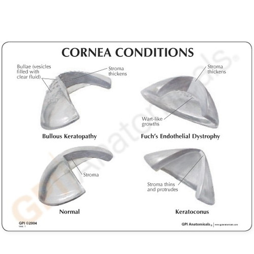 Cornea Eye Model Description Card