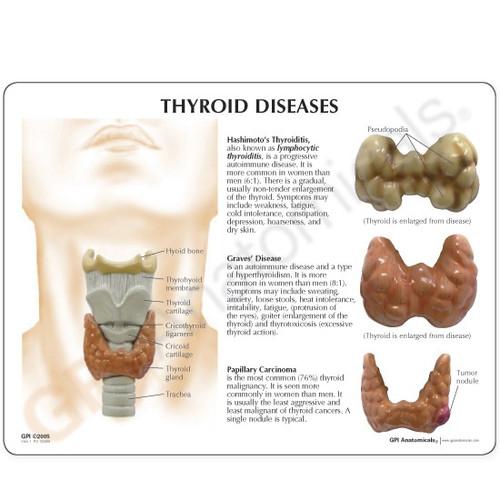Thyroid Model Description Card