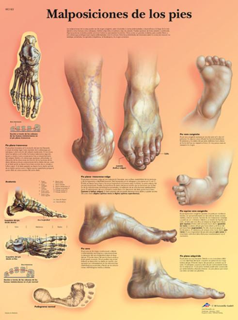 Malposiciones de los pies Poster