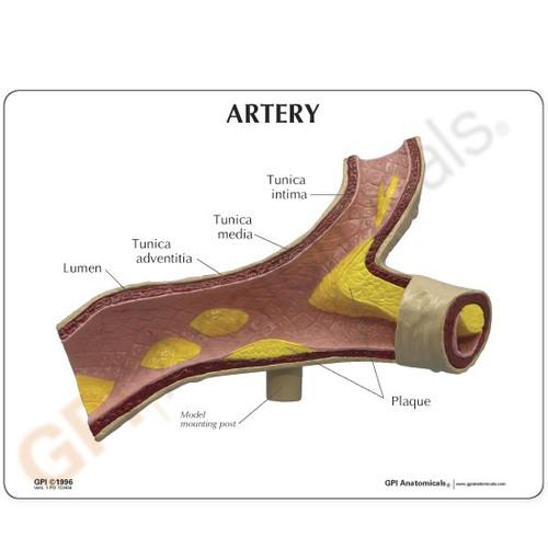Artery Model Description Card