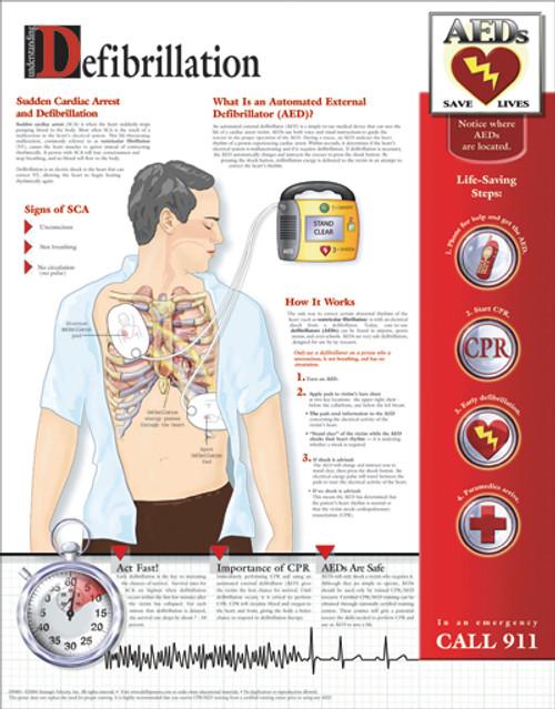 Defibrillation Poster