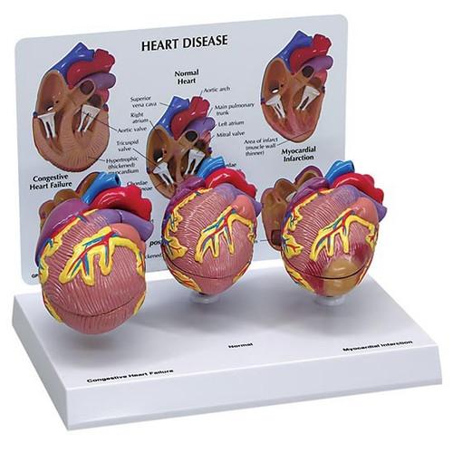Heart Disease Model