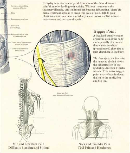 Myofascial Pain Syndrome Poster
