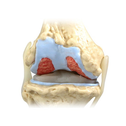 Osteoarthritis Knee Model