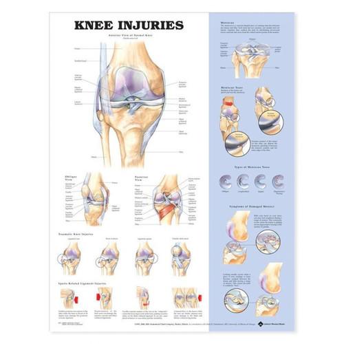 Knee Poster