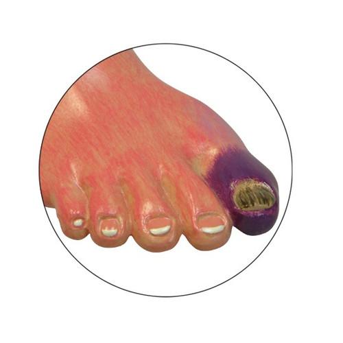 Ulcerated toe