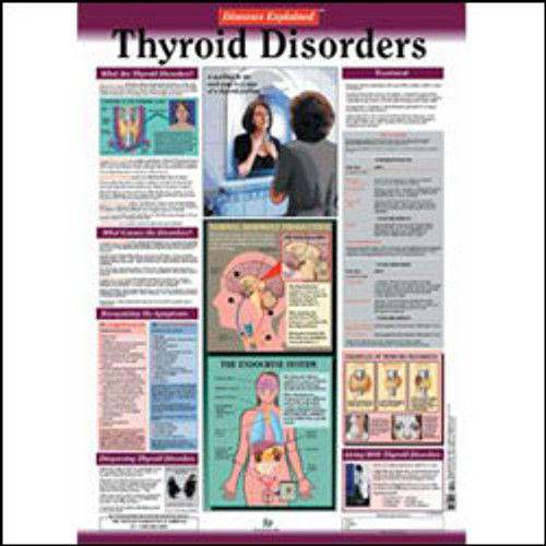 Thyroid Disorders Anatomy Poster