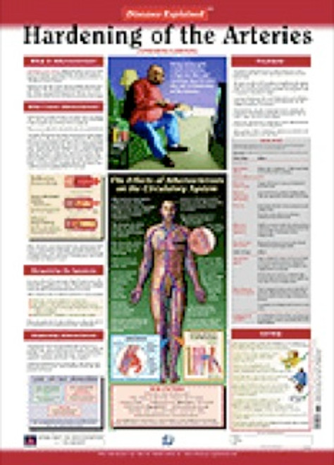 Hardening of the Arteries Anatomy Poster