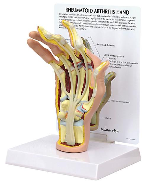 Hand Rheumatoid Arthritis Anatomical Model