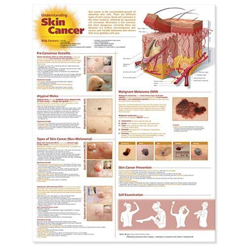 Skin Cancer Poster