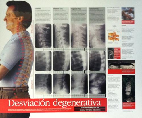 Spinal Degeneration in Spanish