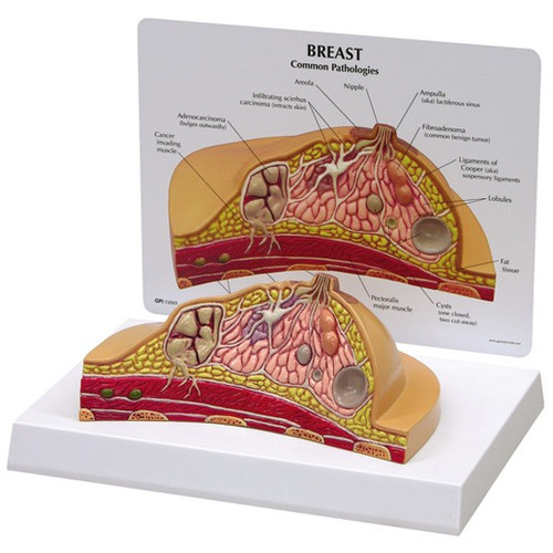 Breast Model Description Card