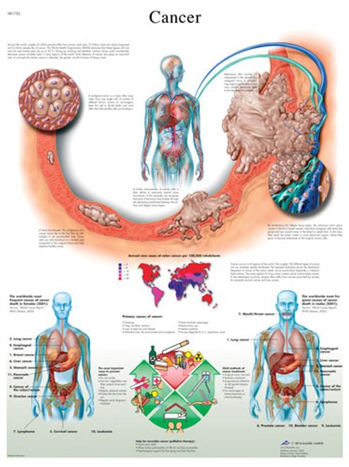 Cancer Anatomical Chart