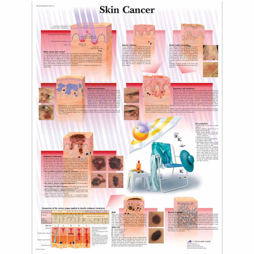Skin Cancer Anatomical Poster