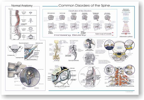 Spine Common Disorders Poster