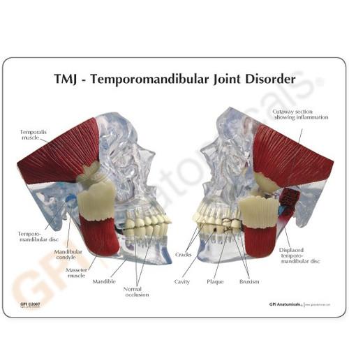 TMJ Dental Model