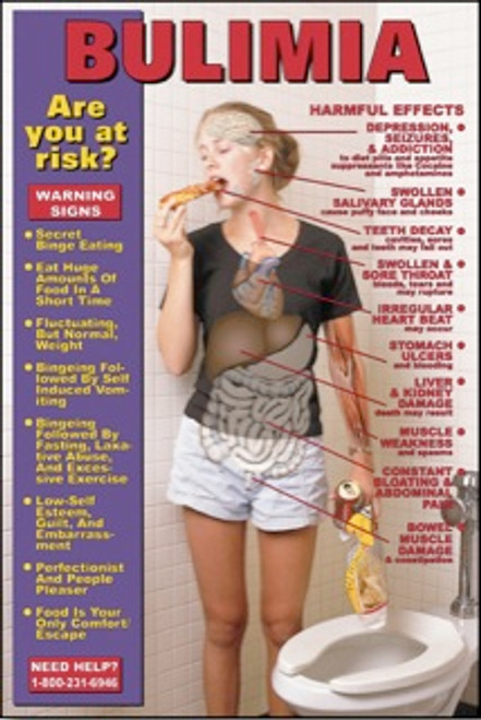 Bulimia Educational Chart