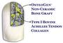 OsteoGen Plug