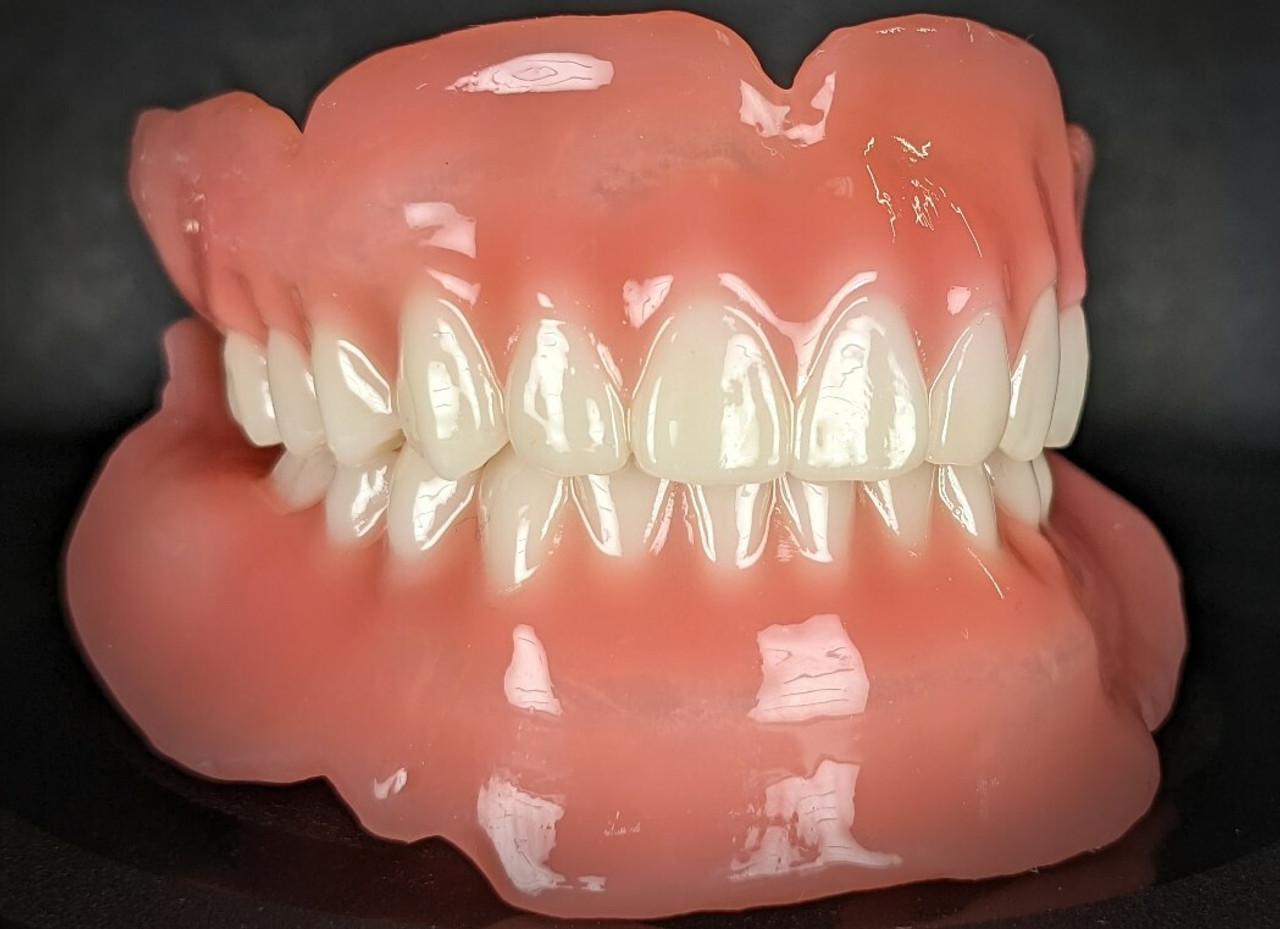Resins, Lights, Action! Digital Denture