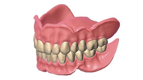 Denture Edition Part B - Immediate Dentures