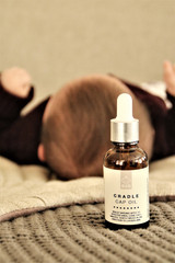 B2B Cradle Cap Oil