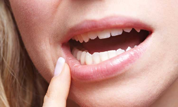 5 Natural Cures for Canker Sores